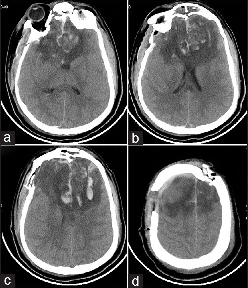 Massive Bifrontal Infarction Following Massive Depressed Fracture
