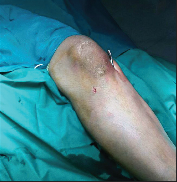 Figure 1: Two stab wounds of 1–1.5 cm each, one medial and the other lateral to the tuberosity of the tibia