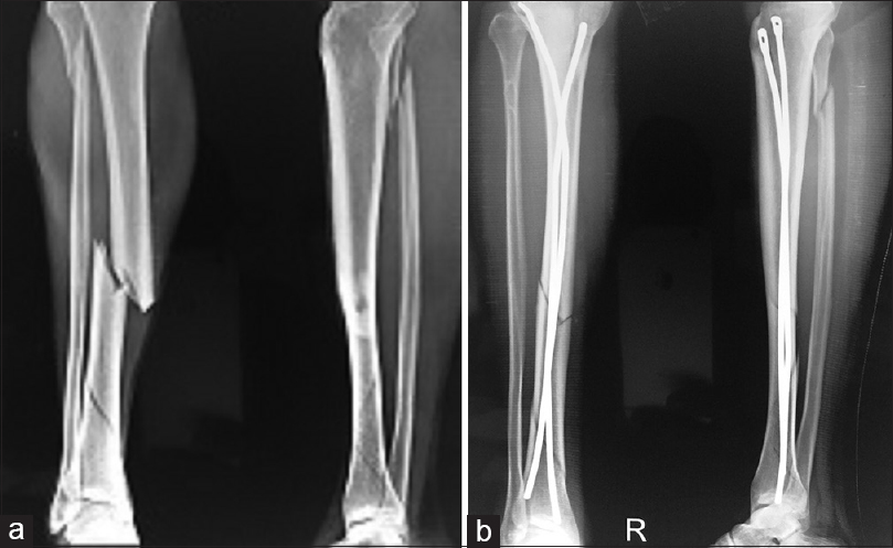 Figure 3: (a) Comminuted fracture tibia. (b) Two nails were advanced into the distal fragment and positioned about 2 cm above the ankle joint with fanning of distal ends